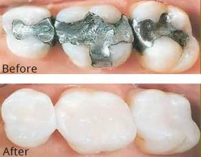 Restorative Dentistry with Colour Matching Composites using the latest bonding techniques